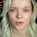 Makija� - kamufla� na wypryski i przebarwienia [WIDEO] - makija� na wypryski, jak zamaskowa� niedoskona�o�ci