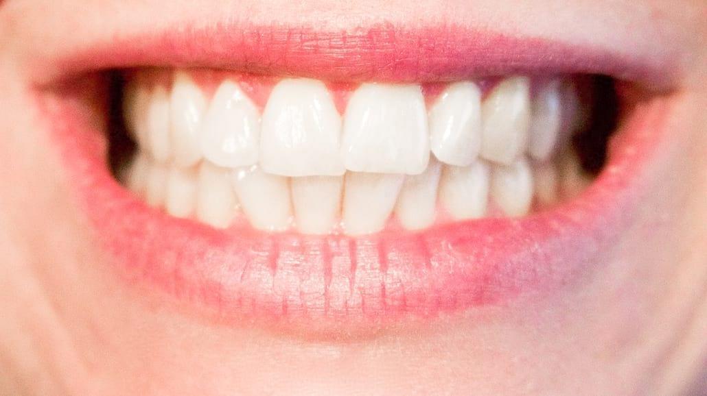 Domowe sposoby na biały uśmiech