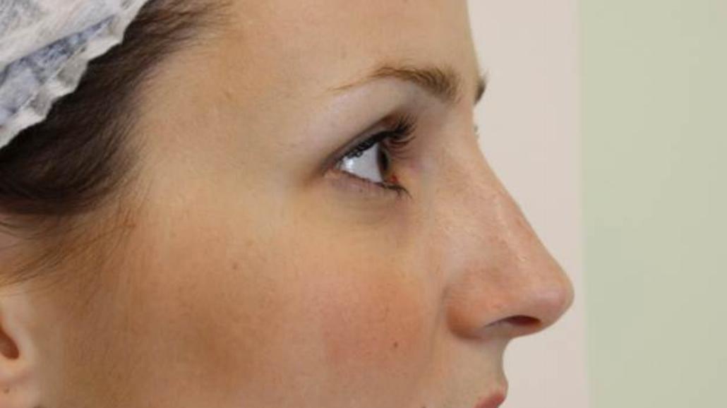 Korekta nosa bez operacji? To możliwe!