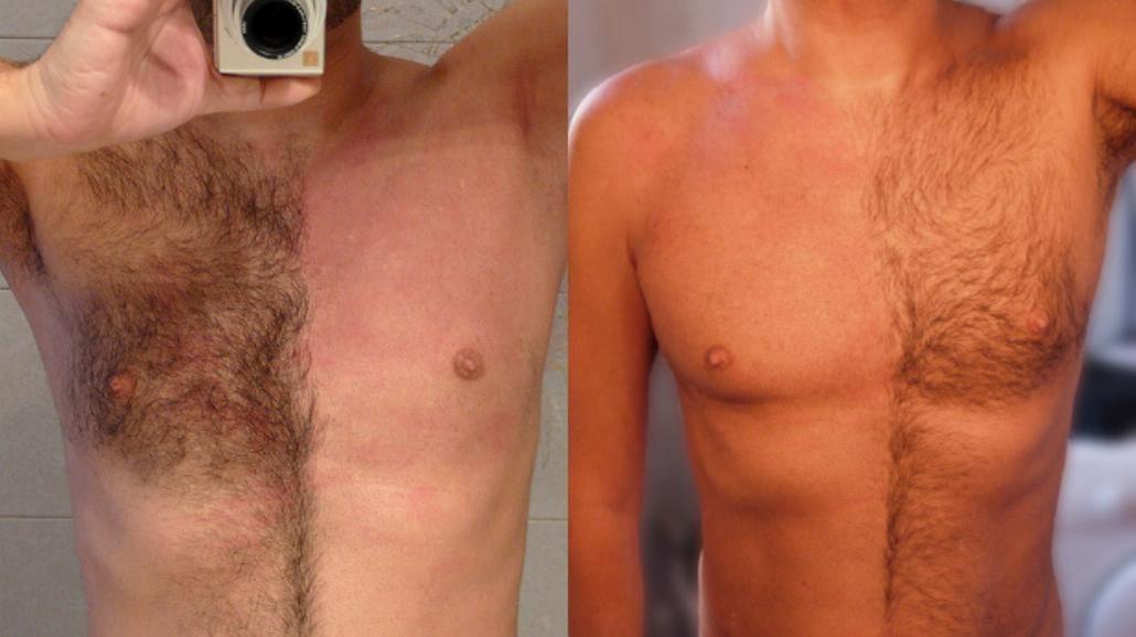 Owłosienie u mężczyzn. Czy faceci powinni golić coś poza twarzą?