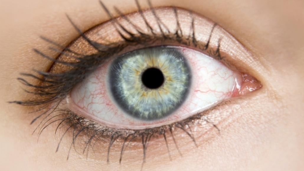 Jak radzić sobie z suchymi i zmęczonymi oczami?