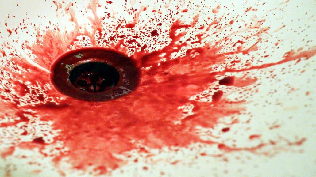 Jak usunąć plamę z krwi?