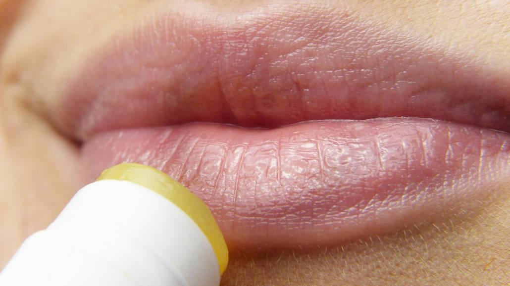 Opryszczka na ustach