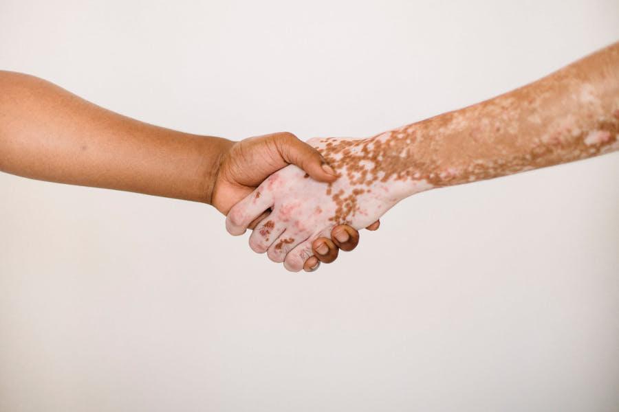 Jak dbać o skórę z łuszczycą