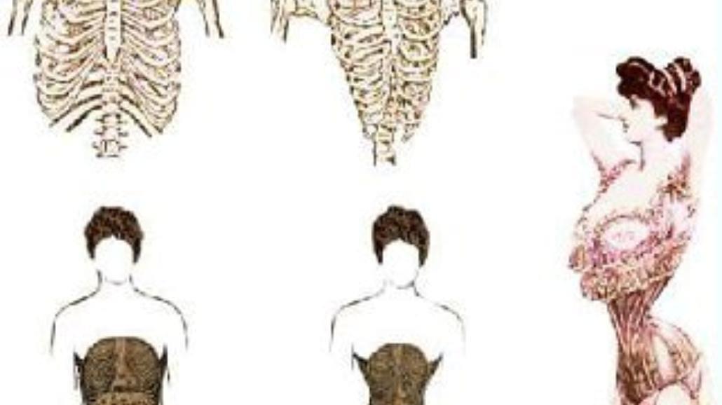 Tortury w służbie modzie i urodzie