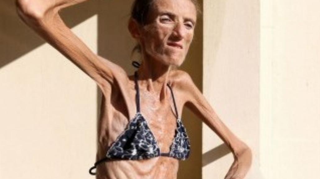 Najchudsza kobieta świata ostrzega przed anoreksją