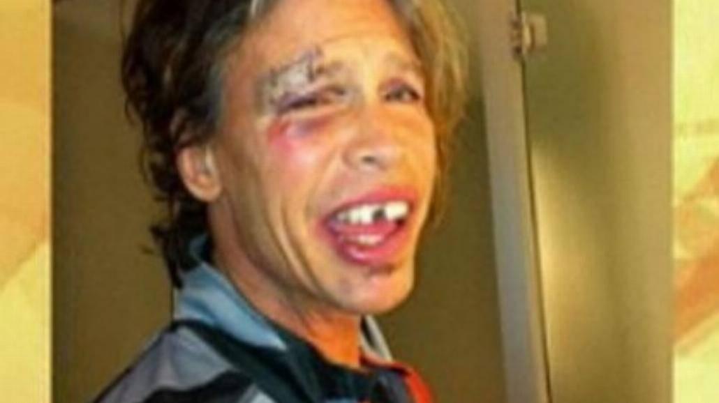 """Wokalista Aerosmith """"zgubił"""" dwa zęby"""